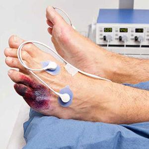 علاج قصور الدورة الدموية بالساقين